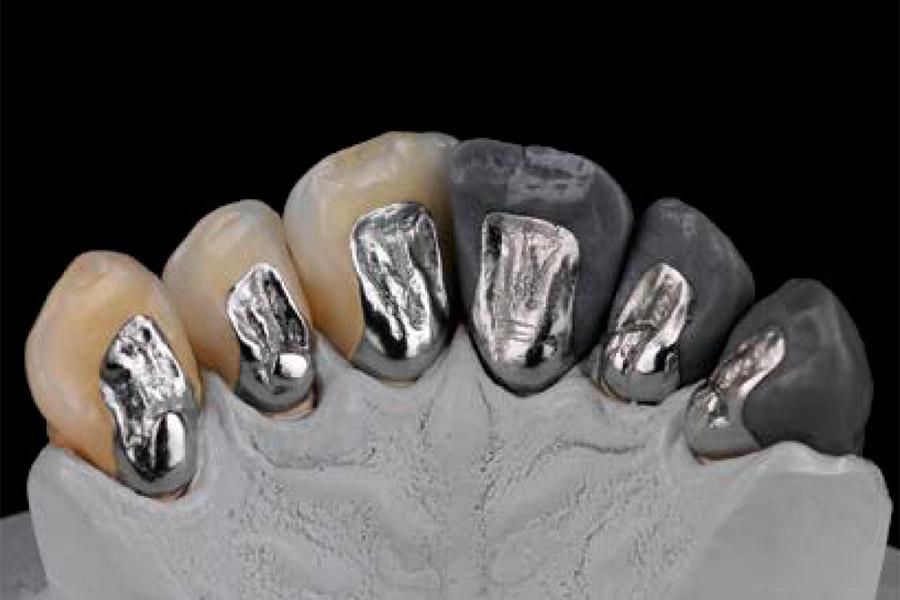 Z Crown Dental Ceramill® Sintron Image